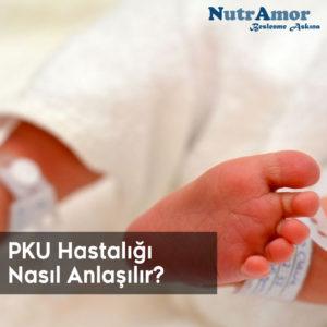 PKU Hastalığı Nasıl Anlaşılır?