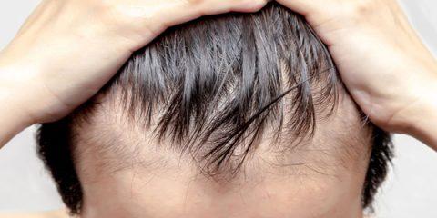 Mide Küçültme Ameliyatı Sonrası Saç Dökülmesi