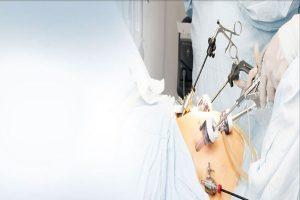 Tüp Mide Ameliyatı Hakkında Merak Ettikleriniz