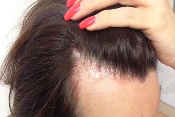 Kolajenin Saç Dökülmesine Faydası